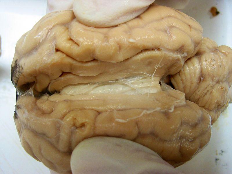 Sheep_Brain.jpg
